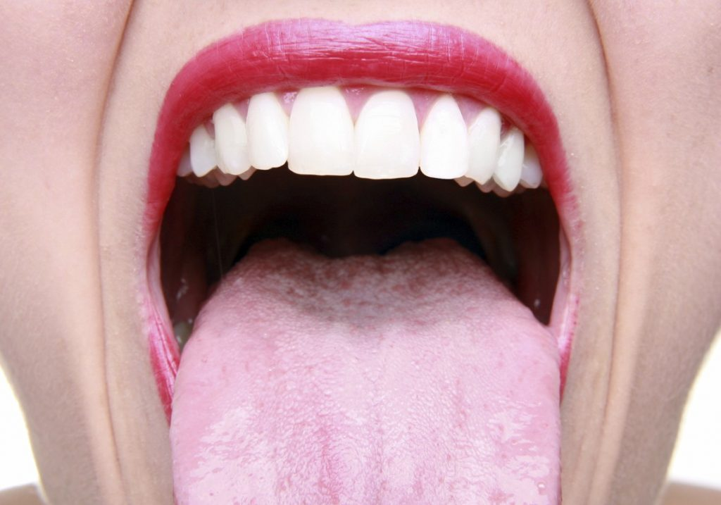Best Herbal And Natural Solutions For Mouth Sore 3