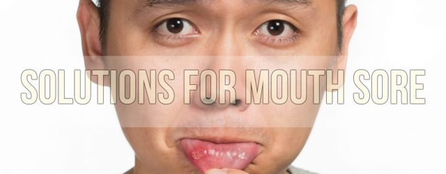 Best Herbal And Natural Solutions For Mouth Sore
