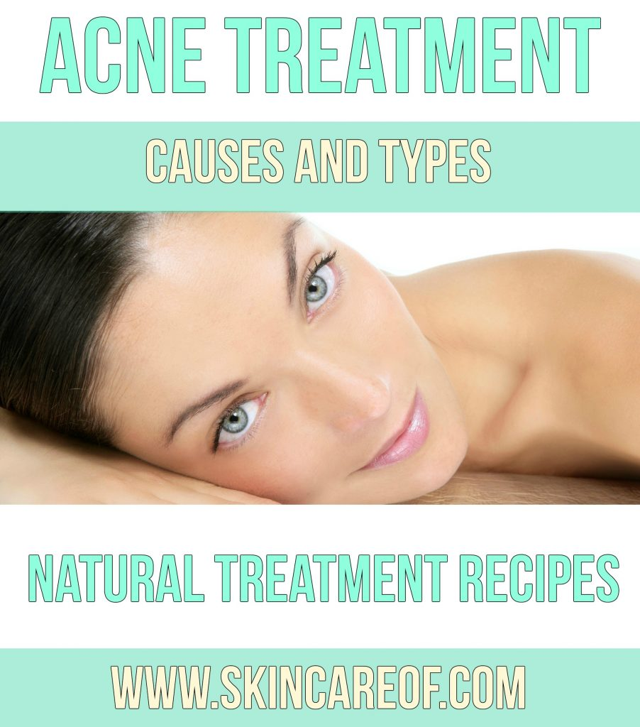 Acne and Acne-Related Skin Care_Info
