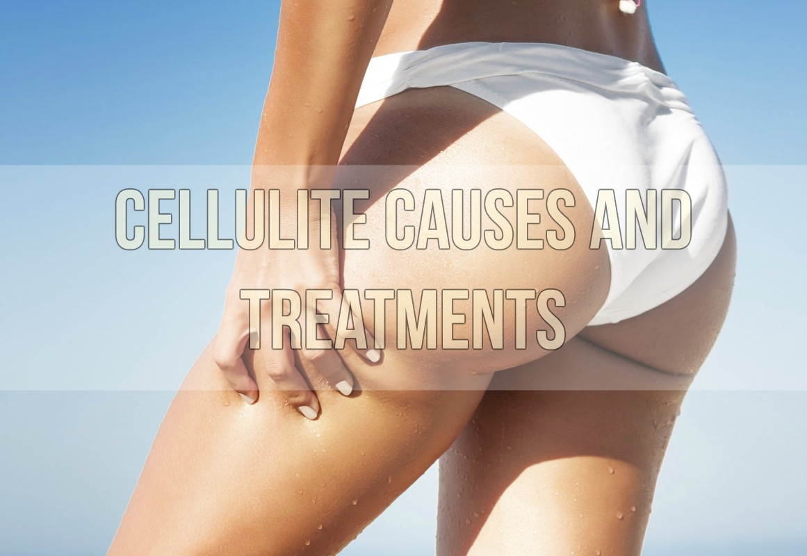 Cellulite Causes and Treatments