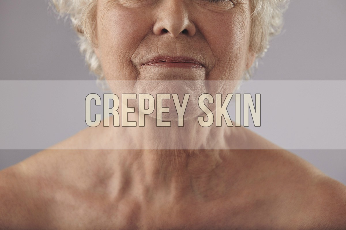 How to stop crepey skin