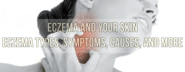 Eczema and Your Skin Eczema Types, Symptoms, Causes, and More