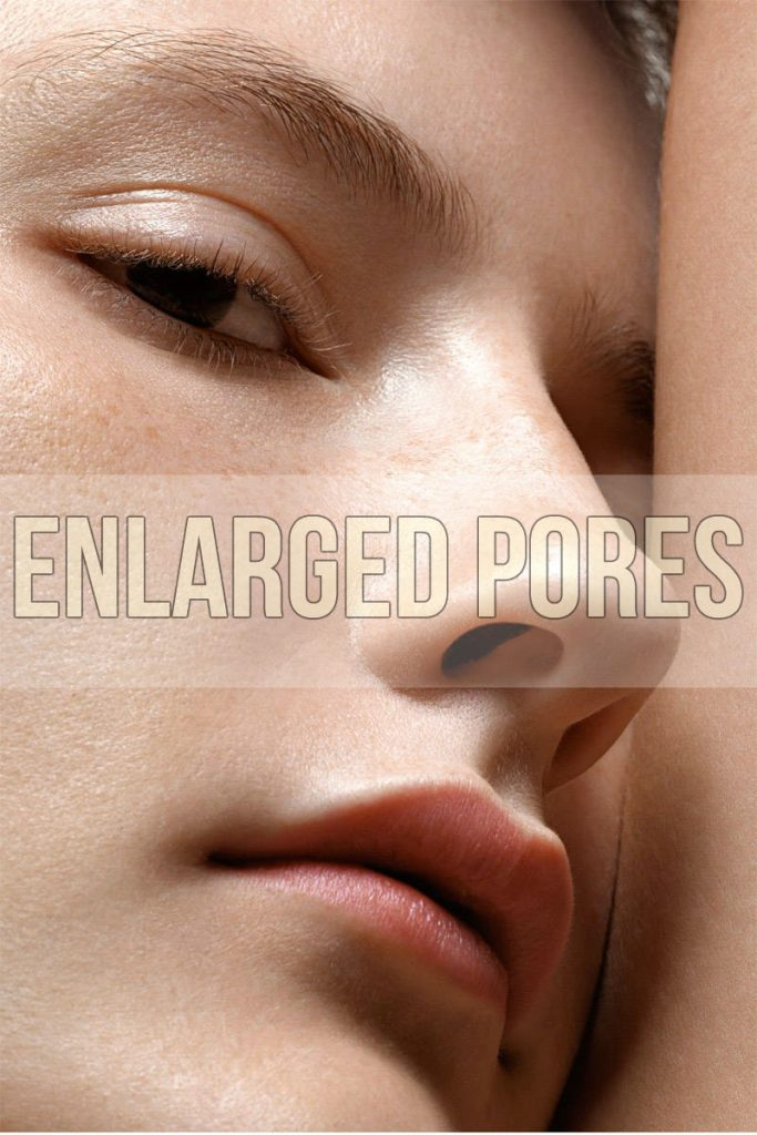 How to Minimize Enlarged Pores