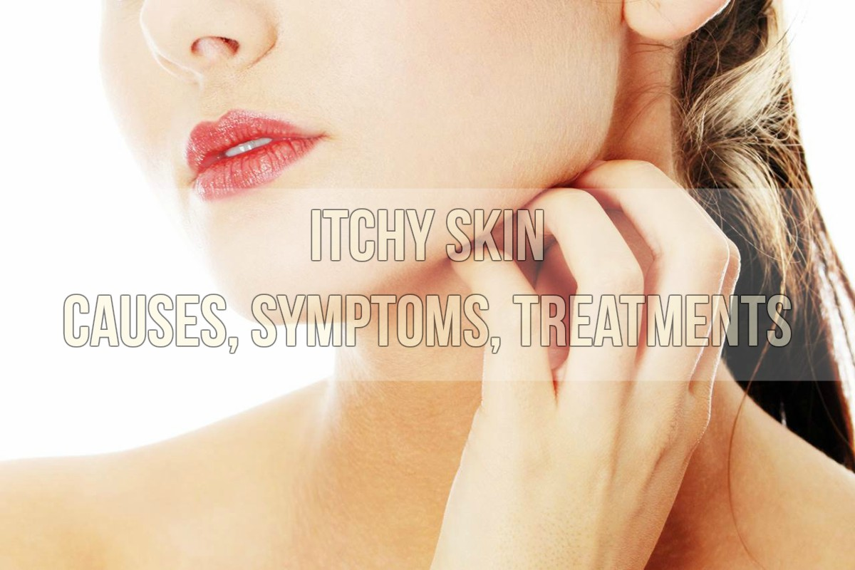 Itchy Skin Causes, Symptoms, Treatments